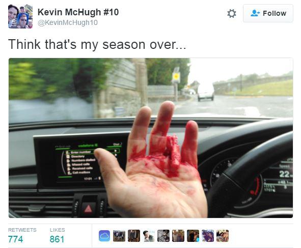 League of Ireland footballer shreds finger after catching wedding