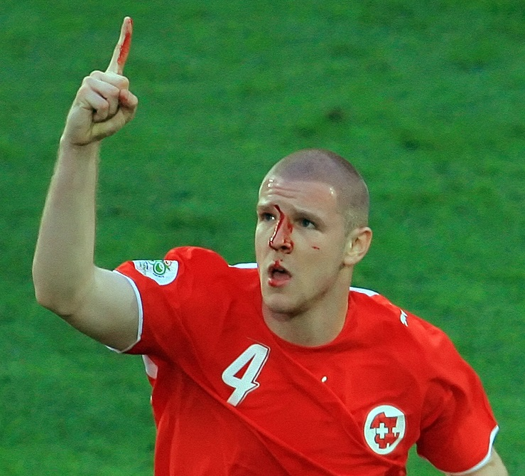 Swiss defender Philippe Senderos with bl