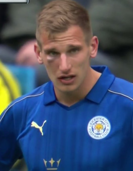 Marc Albrighton was left with a nasty black eye
