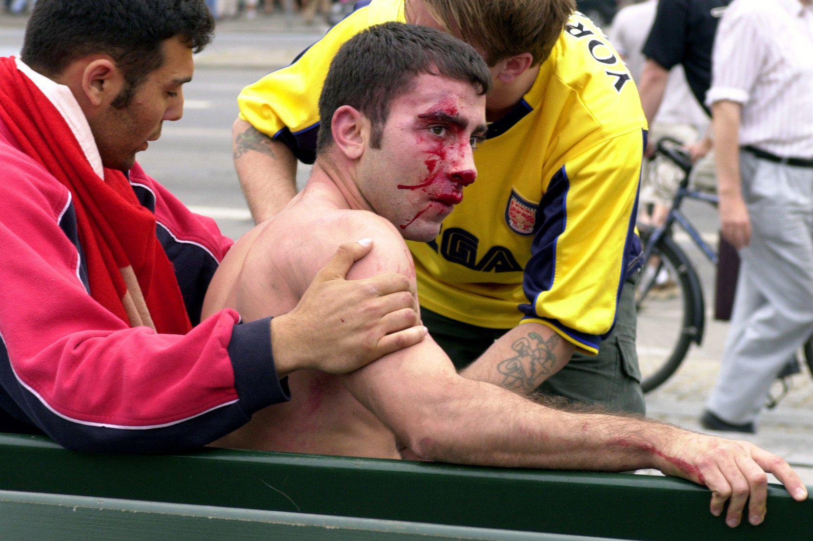 A bloodied Arsenal fan in Copenhagen before the final