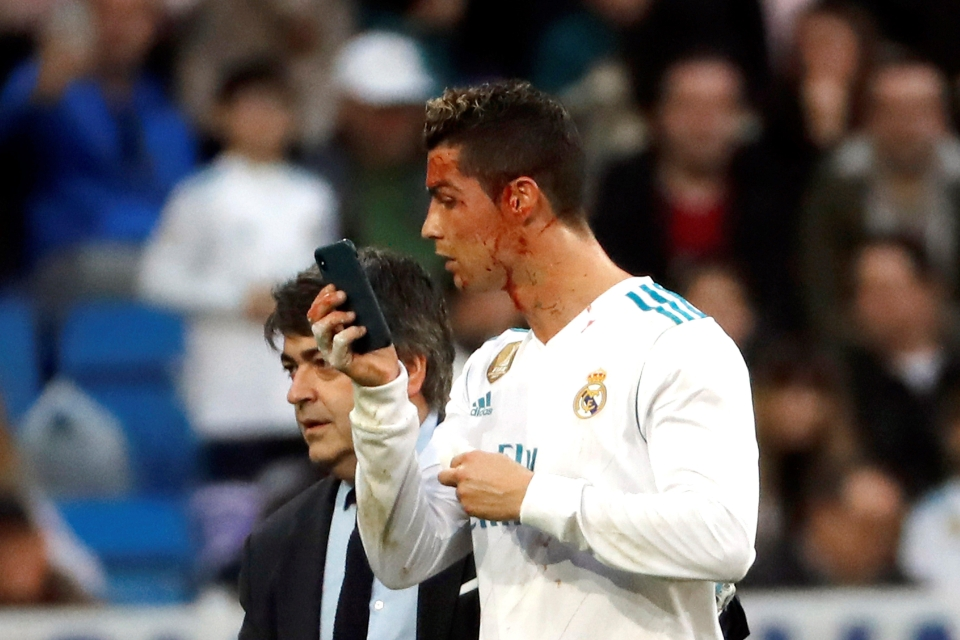 Ronaldo was brave in stooping to score his second