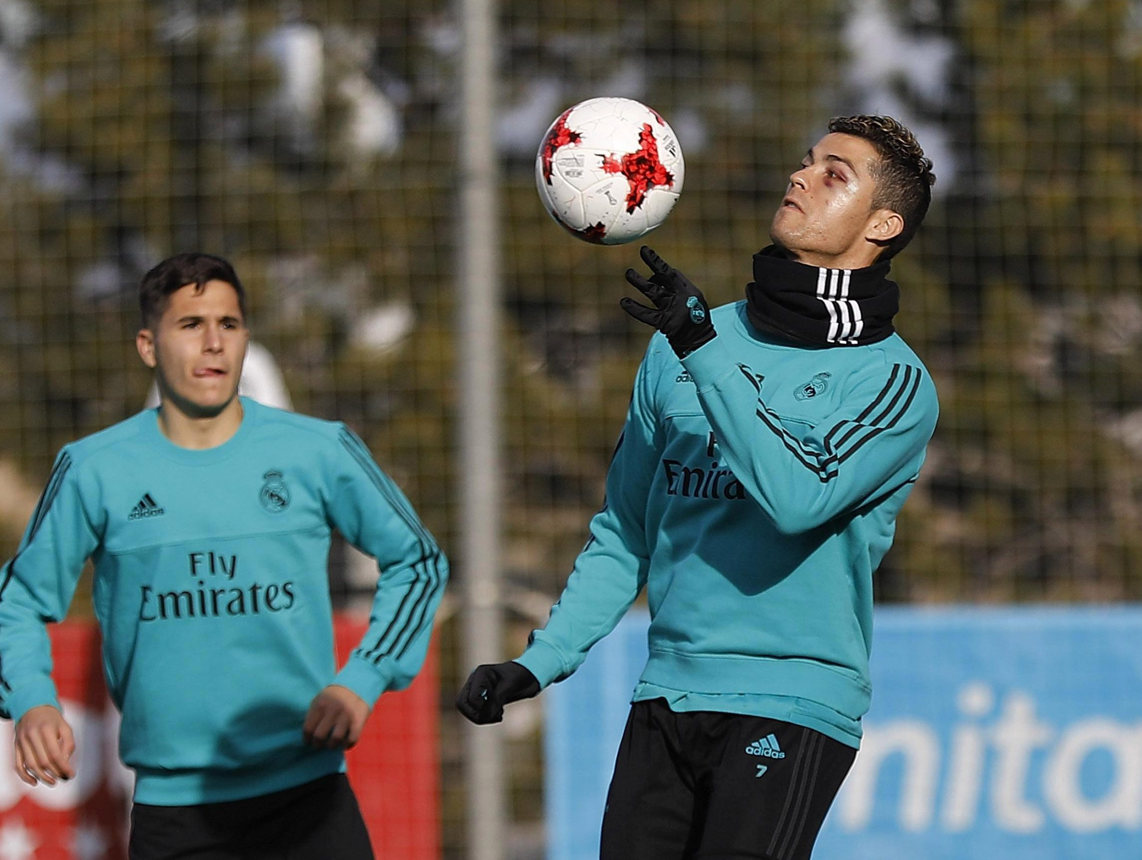 Ronaldo's cut was evident in training
