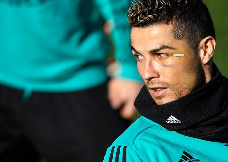 This black eye did not go down well in Ronaldo family