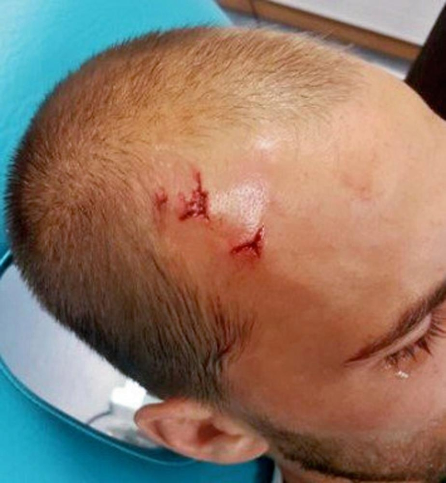 Bas Dost appears to have picked up two nasty cuts in an alleged attack